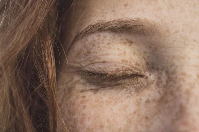 zbliżenie na piegowatą twarz z zamkniętą powieką bez makijażu