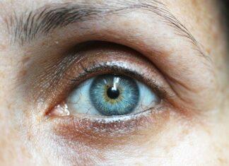 Jak zmniejszyć cienie pod oczami